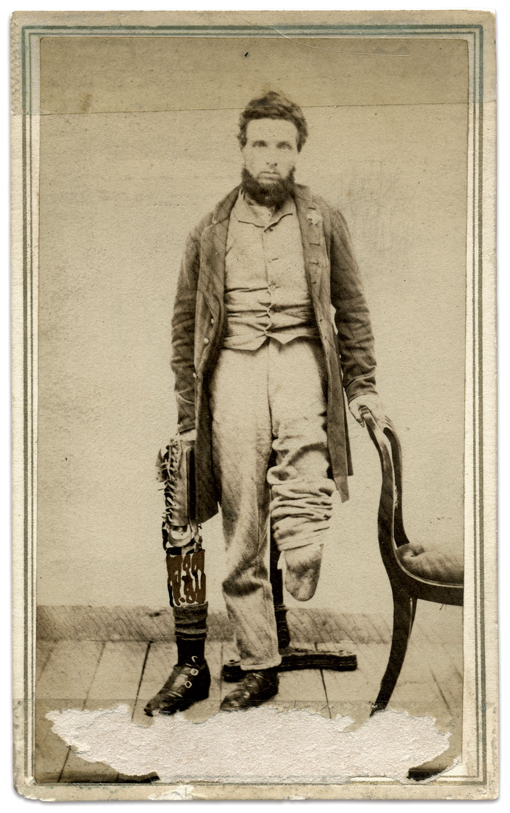 Carte de visite attributed to a photographer at Sloan General Hospital, Montpelier, Vt. John Gibson Collection.