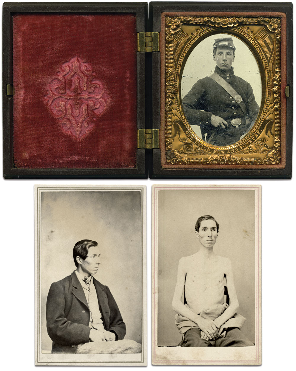 Ninth-plate tintype, top, by an anonymous photographer;Carte de visite, bottom left, by Watson & Currier of Montpelier, Vt;Carte de visite by R.M. McIntosh of Northfield, Conn.