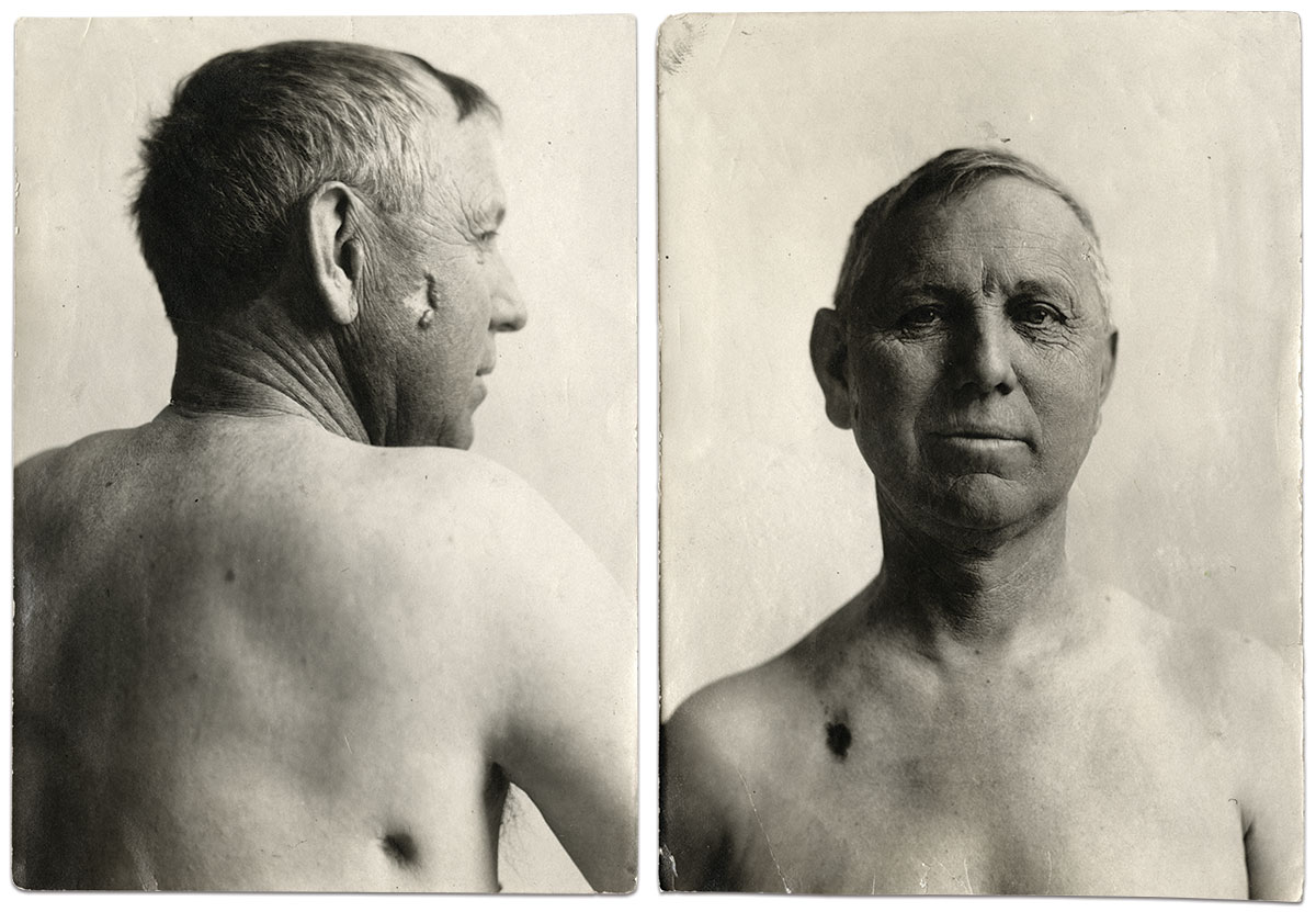 These post-wound portraits of Lockwood date from October 1864, left, and December 1910. Prints by an anonymous photographer.