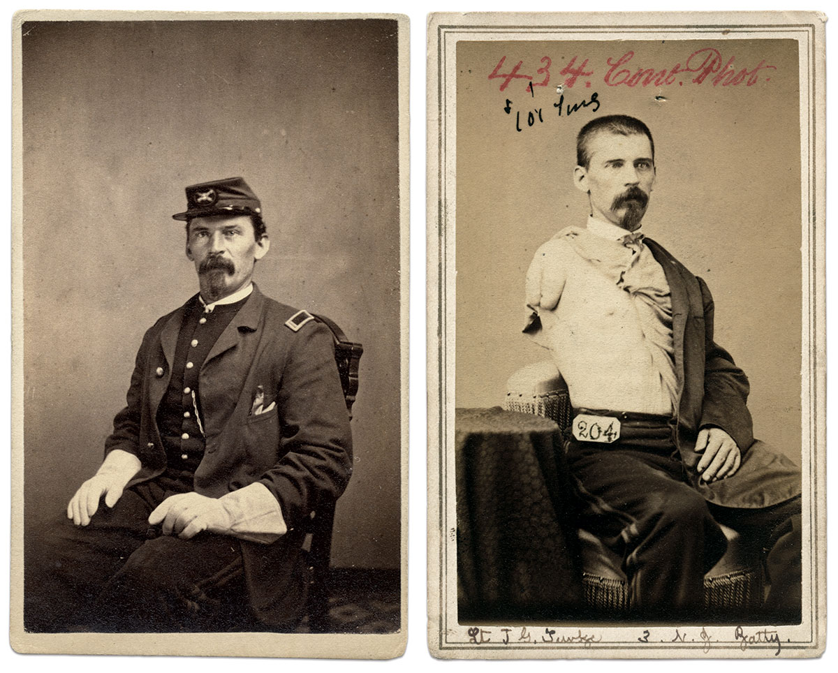 Cartes de visite by S. Friedlaender of New York City, top, and the Surgeon General's Office of the Army Medical Museum.